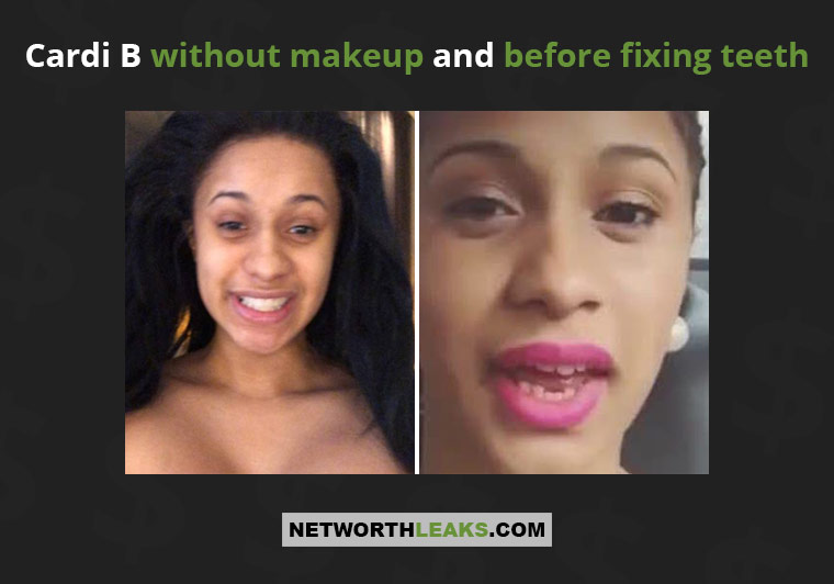 Cardi B without makeup and before fixing teeth